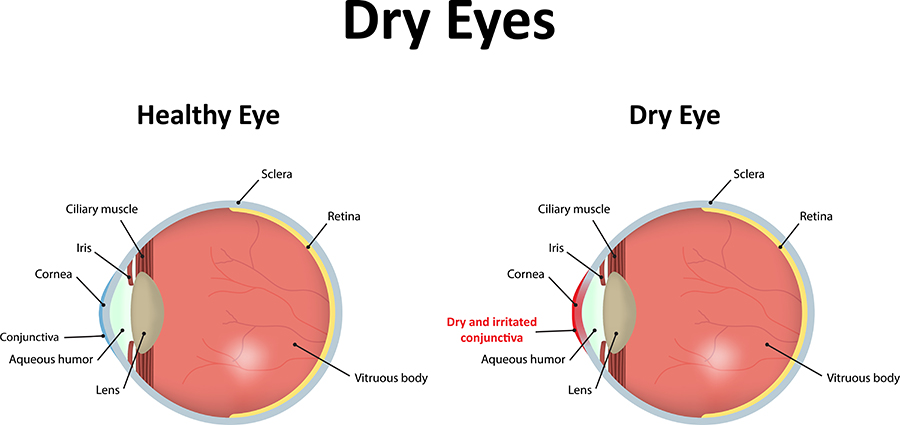 Chart Showing a Healthy Eye, Compared to One With Dry Eye