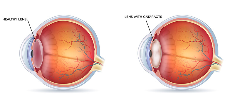 Chart Showing a Cataract in the Eye