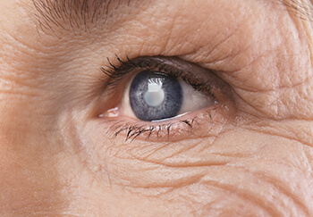 Closeup of a Cataract in the Eye